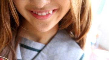 Jangan Malu Tersenyum dengan Gingsul